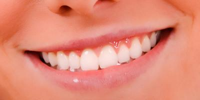 5 Cosmetic Dentistry Services to Brighten Your Smile, Kalispell, Montana