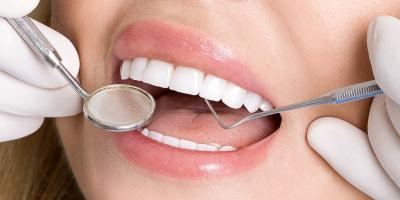 How to Care for Porcelain Veneers, Gulf Shores, Alabama