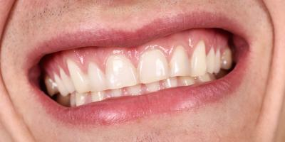 What Are the Benefits of Gum Grafting?, ,