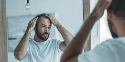 5 FAQs About Hair Transplantation Procedures, Rochester, New York
