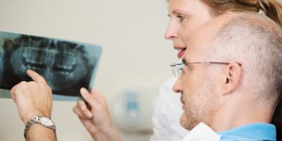 Your Guide to Preparing for Oral Surgery, High Point, North Carolina
