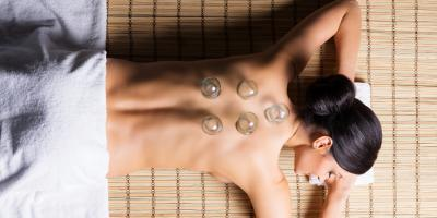 What to Expect During Your Cupping Therapy Appointment, North Hempstead, New York