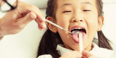 What You Should Know About Dental Sealants, Honolulu, Hawaii