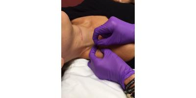 What to Know About Dry Needling, ,