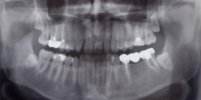What Does It Mean to Have an Impacted Tooth?, Frederick, Maryland