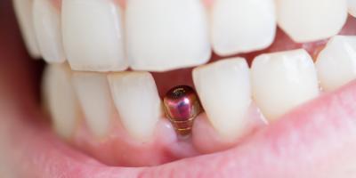 Implant Dentist Explains Bone Grafting, Pagosa Springs, Colorado
