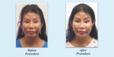 Silhouette InstaLift plus $2000 worth of filler only $3500!, Honolulu, Hawaii
