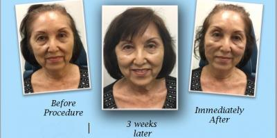 $1,000 Off Silhouette InstaLift, new non-surgical facelift!!, Honolulu, Hawaii