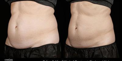 How SculpSure™ Body Contouring Helps Burn Stubborn Fat, Koolaupoko, Hawaii