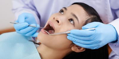 A Guide to Simple vs. Surgical Tooth Extractions, Lexington, South Carolina