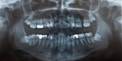 Wisdom Teeth Removal: What You Should Know Before Your Dental Surgery, Lincoln, Nebraska