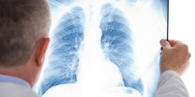 What Contributes to Lung Cancer?, Lincoln, Nebraska