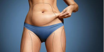 3 Benefits of Tickle Liposuction, Homer, Alaska