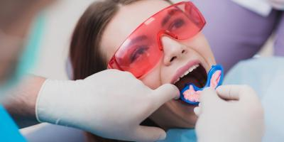 What to Know About Fluoride Treatments at the Dentist, Mammoth Spring, Arkansas