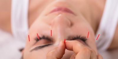 Can Acupuncture Help Relieve Sleep Apnea?, Nyack, New York