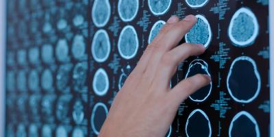 Concussion 101: 6 Signs You Should Go to A Medical Clinic, Dardanelle, Arkansas