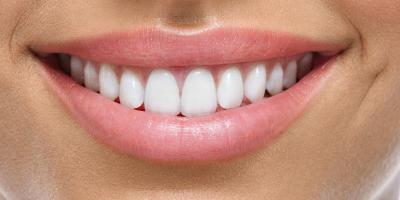 3 Top Teeth Whitening FAQs Answered, Middletown, New York