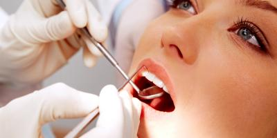 5 Reasons to Schedule a Teeth Cleaning With Your Dentist, Middletown, New York