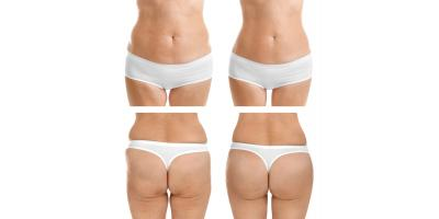 Best Body Shaping - Contouring in Stone Mountain & Lilburn,  Georgia. , Stone Mountain, Georgia