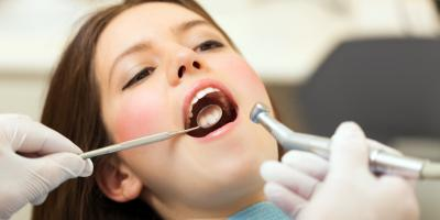 3 Types of Cavities, Columbus, Nebraska