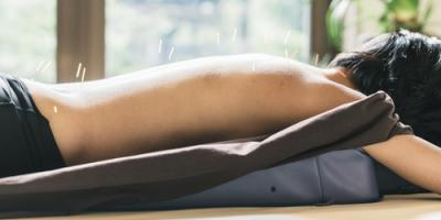 How Does Acupuncture Help With Circulatory Problems?, Manhattan, New York