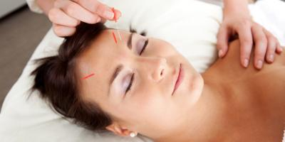 FAQ About Facial Acupuncture , Manhattan, New York