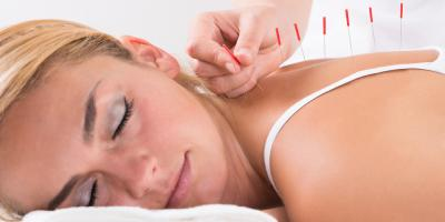 How Does Acupuncture Compare to Prescription Medication?, Nyack, New York
