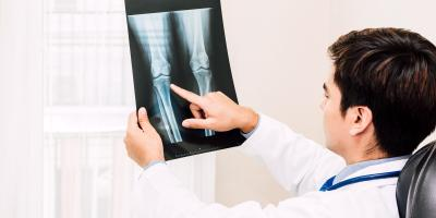 What Is the First Sign of Osteoporosis?, O'Fallon, Missouri