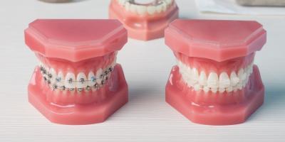 A Dentist Explains Child vs. Adult Orthodontics, Onalaska, Wisconsin