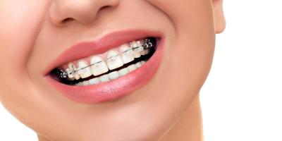 Orthodontics: The Perfect Way to Straighten Your Smile, Amery, Wisconsin