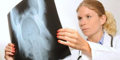 4 FAQs About Pelvic Prolapse Answered, Des Peres, Missouri