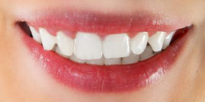 Your Guide to Properly Caring for Veneers, Perry, Georgia