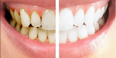 Improve Your Smile With Dental Veneers, Honolulu, Hawaii