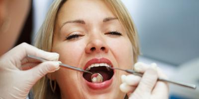 What to Expect During a Dental Crown Procedure, Prairie du Chien, Wisconsin
