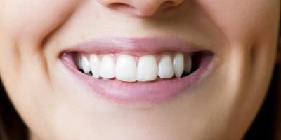 5 Preventative Dental Care Tips for a Healthy Smile, Lincoln, Nebraska