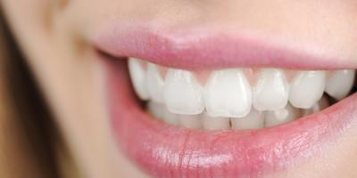 Everything to Know About Dental Implant Care, High Point, North Carolina