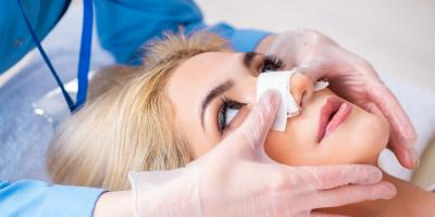 3 Non-Cosmetic Reasons You May Need a Rhinoplasty, Orange, Connecticut