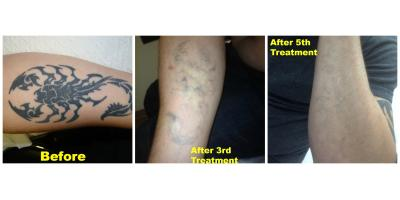 East Coast Laser Tattoo Removal Explains Why Location Matters for Getting a Tattoo Removed, Tuckahoe, Virginia