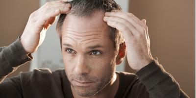 How to Support a Partner With Hair Loss, Rochester, New York