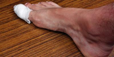 What Causes an Ingrown Toenail?, Greece, New York