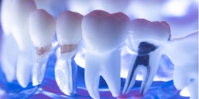 What to Expect Following a Root Canal Procedure , Rochester, New York