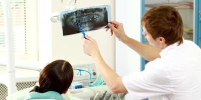 4 FAQAbout Dental X-Rays, Sanford, North Carolina