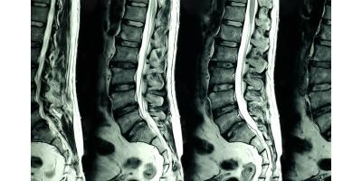 Chiropractic Workshop in Clifton, NJ: Interpreting Your Spinal MRI – You Are Not Your Diagnosis, Manhattan, New York