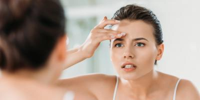 A Comprehensive Guide to Adult Acne, Anchorage, Alaska