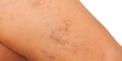 Connecticut Dermatologists Explain What Causes Spider Veins & How to Make Them Disappear, Weatogue, Connecticut