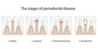 Gingivitis & Periodontitis: Symptoms & Treatment of Gum Disease, North Branch, Minnesota