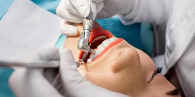 Causes of Discoloration & How Teeth Cleaning Can Help, Pendleton, South Carolina