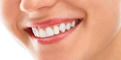 5 Reasons Why It's Important to Schedule Regular Dental Cleanings, Manhattan, New York