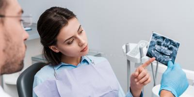 How to Tell If You Have an Impacted Tooth, Anchorage, Alaska