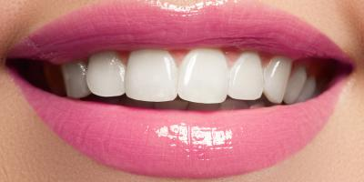 3 Reasons to Choose Professional Teeth Whitening Treatments, Lexington-Fayette Central, Kentucky